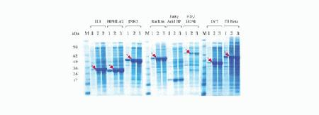 Eight different human ORFs were cloned into the Champion™ pET300/NT-DEST vector using Gateway® cloning. Positive clones were transformed into BL21(DE3) <i>E. coli</i>. The clones were expressed in LB + IPTG (lane 1), ready-to-use liquid MagicMedia™ medium (lane 2), or MagicMedia™ medium prepared from powder (lane 3).  Two hundred microliters of each culture were lysed and analyzed on a Coomassie-stained NuPAGE® Novex® 4-12% Bis-Tris Protein Gel. M: SeeBlue® Protein Standard.