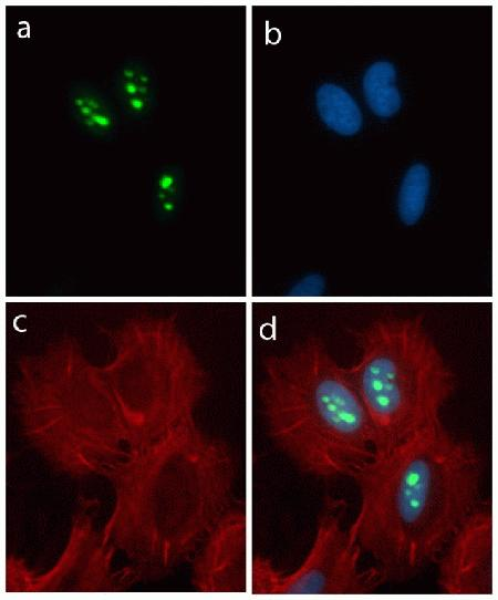 Immunocytochemistry analysis of HeLa cells stained with Nucleostemin ABfinity™ Recombinant Rabbit Oligoclonal Antibody, using (A) Alexa Fluor® 488 Goat Anti-Rabbit was used as secondary (green). (B) DAPI was used to stain the nucleus (blue) and (C) Alexa Fluor® 594 phalloidin was used to stain actin (red). (D) Composite image of cells showing nuclear localization of Nucleostemin.