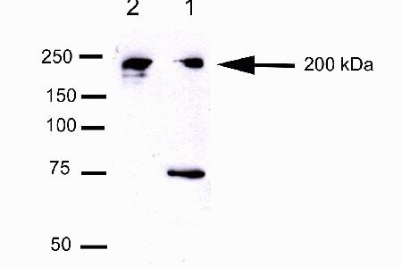 Western Blot analysis of Hela and U20S cell lysates using mouse anti-Cep170 antibody (cat # 41-3200).