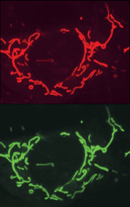 Colocalization of fluorescent staining by rhod-2 AM (Cat. no. R1244, R1245MP; upper panel) and mitochondrion-selective MitoFluor™ Green stain (Cat. no. M7502; lower panel) in an adult rat cortical astrocyte. Cells were simultaneously loaded with rhod-2 AM (4.5 µM) and the MitoFluor™ Green stain (20 nM) for 30 minutes at 22°C. Confocal laser-scanning microscopy using 488 nm excitation and spectrally resolved detection, at 505–530 nm for MitoFluor™ Green stain and =585 nm for rhod-2, shows almost identical staining distribution. The images were contributed by Michael Duchen, University College, London. Reproduced with permission from J Cell Biol 145, 795 (1999).