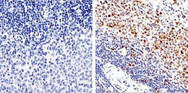 PCNA Antibody (13-3940) in Immunohistochemistry (Paraffin)