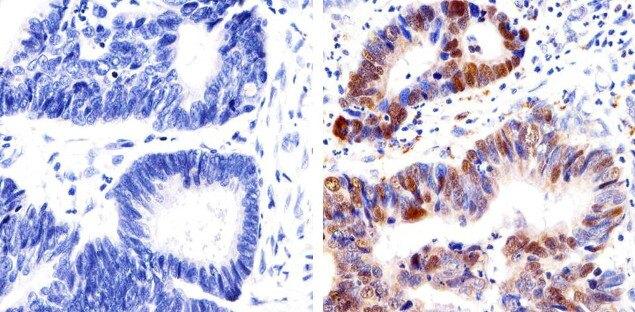 p53 Antibody (13-4000) in Immunohistochemistry (Paraffin)