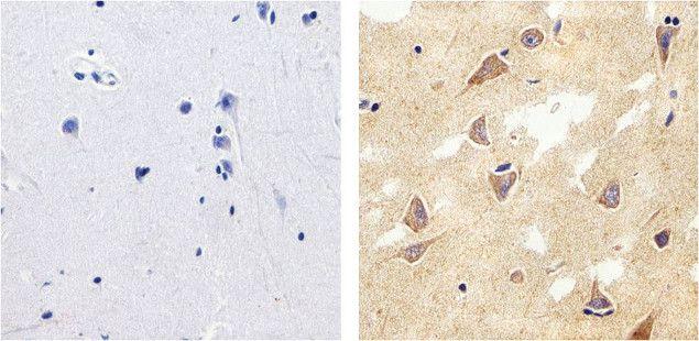 Tau Antibody (13-6400) in Immunohistochemistry (Paraffin)