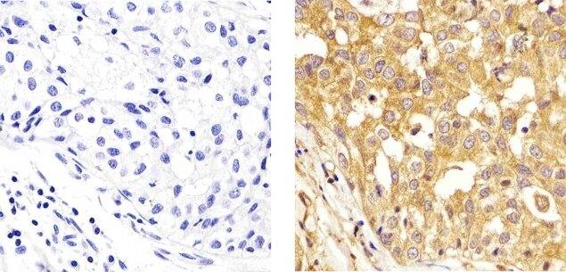 alpha Tubulin Antibody (13-8000) in Immunohistochemistry (Paraffin)