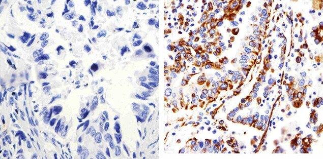 Connexin 43 Antibody (13-8300) in Immunohistochemistry (Paraffin)
