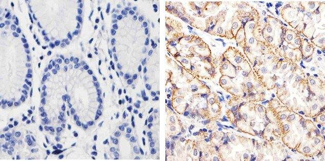 beta Catenin Antibody (13-8400) in Immunohistochemistry (Paraffin)