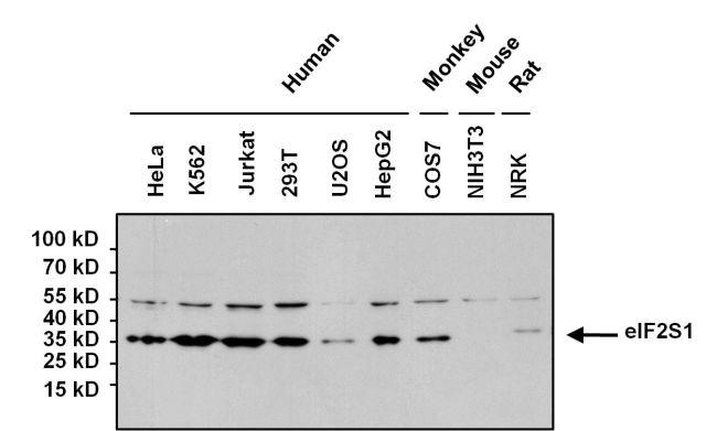 Mouse IgG (H+L) Secondary Antibody (31430) in Western Blot
