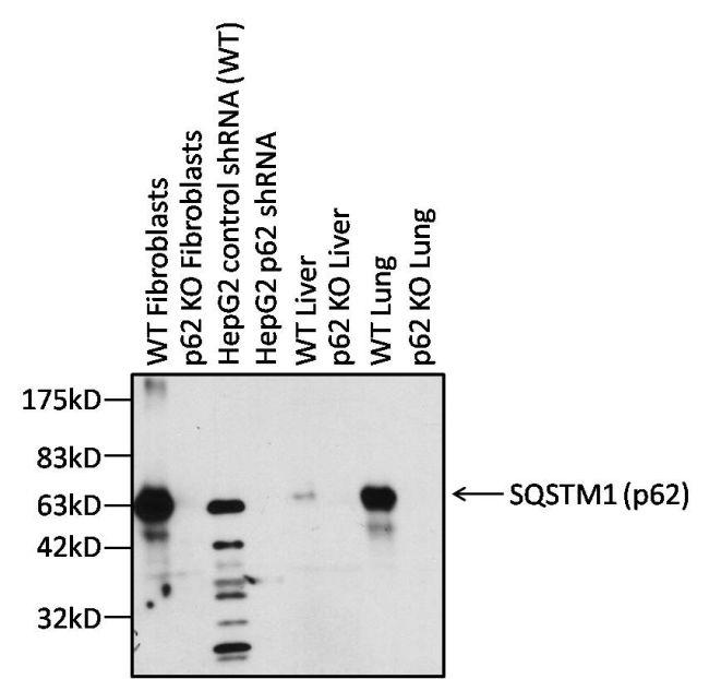 Rabbit IgG F(ab')2 Secondary Antibody (31461) in Western Blot
