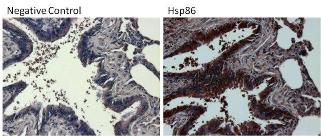 Rabbit IgG (H+L) Secondary Antibody (31466) in Immunohistochemistry (Paraffin)
