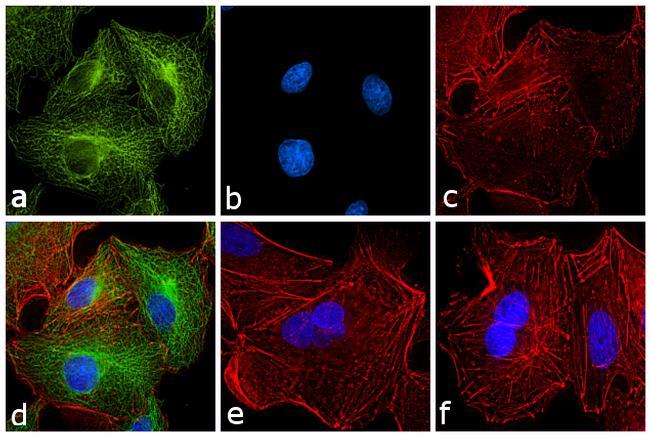 Rat IgG (H+L) Secondary Antibody (31629) in Immunofluorescence