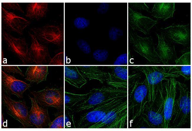 Mouse IgG (H+L) Secondary Antibody (31660) in Immunofluorescence