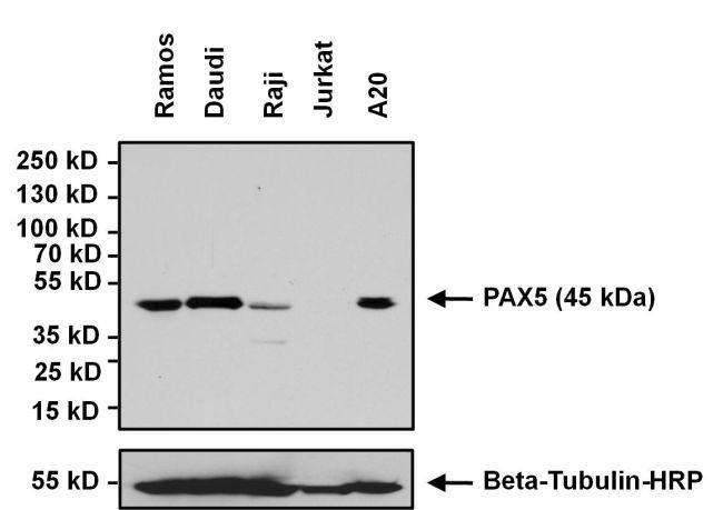 Rabbit IgG (H+L) Secondary Antibody (32460) in Western Blot