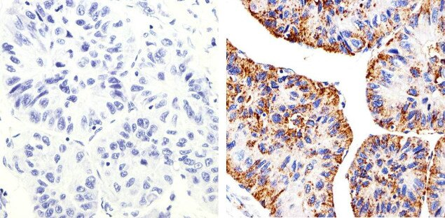 Claudin 2 Antibody (32-5600) in Immunohistochemistry (Paraffin)