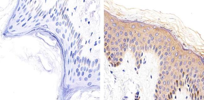 Desmoglein 1 Antibody (32-6000) in Immunohistochemistry (Paraffin)