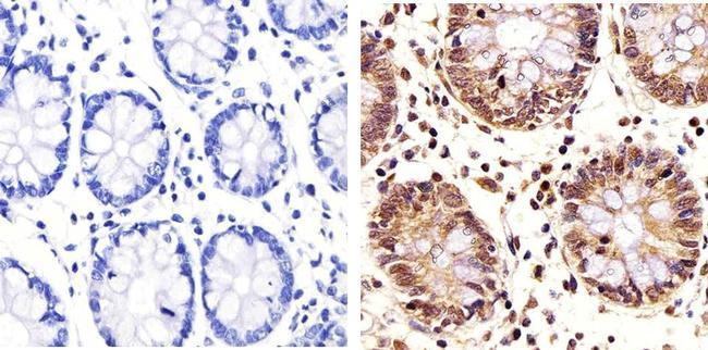 PLK1 Antibody (33-1700) in Immunohistochemistry (Paraffin)