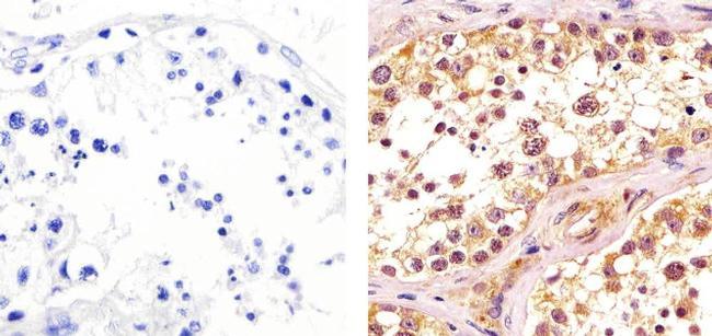 CDK1 Antibody (33-1800) in Immunohistochemistry (Paraffin)