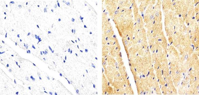 p38 MAPK beta Antibody (33-8700) in Immunohistochemistry (Paraffin)