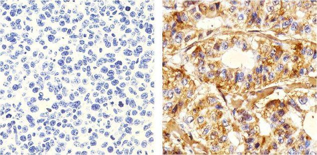 delta Catenin Antibody (33-9700) in Immunohistochemistry (Paraffin)