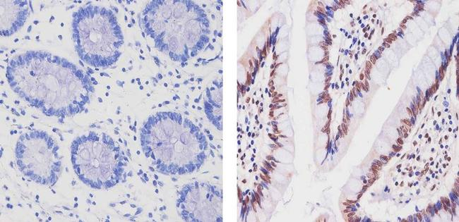Cullin 3 Antibody (34-2200) in Immunohistochemistry (Paraffin)