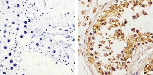 c-Kit / CD117 Antibody (34-8800)