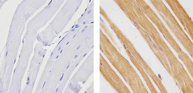 TBX1 Antibody (34-9800) in Immunohistochemistry (Paraffin)