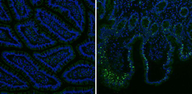 Mouse IgG (H+L) Secondary Antibody (35502) in Immunofluorescence