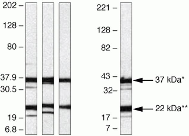 Syndecan 4 Antibody (36-3100) in Western Blot