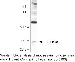 Connexin 31 Antibody (36-5100) in Western Blot