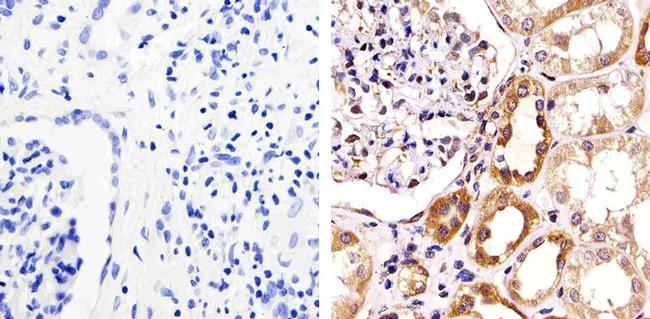 ZO-3 Antibody (36-4000) in Immunohistochemistry (Paraffin)