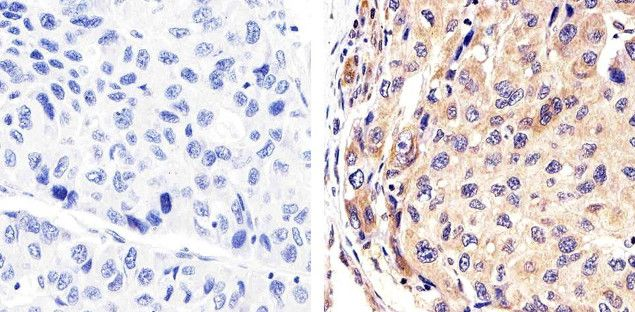 Syndecan 2 Antibody (36-6200) in Immunohistochemistry (Paraffin)