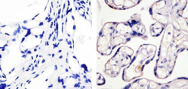 Phospho-eNOS (Ser1179) Antibody (36-9100) in Immunohistochemistry (Paraffin)