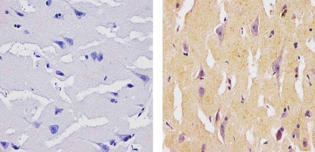 SOCS1 Antibody (37-4100) in Immunohistochemistry (Paraffin)