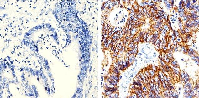 Claudin 7 Antibody (37-4800) in Immunohistochemistry (Paraffin)