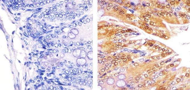 PLK1 Antibody (37-7100) in Immunohistochemistry (Paraffin)