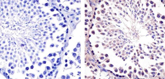 HSP90 beta Antibody (37-9400) in Immunohistochemistry (Paraffin)