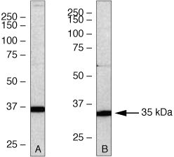 PSMD14 Antibody (38-0200) in Western Blot