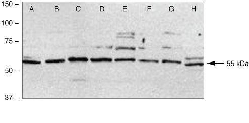 c-Fos Antibody (38-4950) in Western Blot