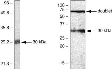 SOCS1 Antibody (38-5200) in Western Blot