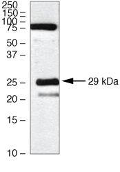 Claudin 18 Antibody (38-8100) in Western Blot