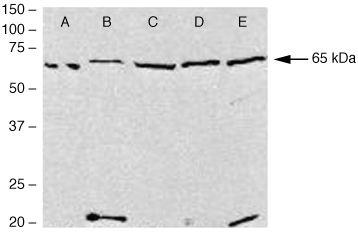 PDLIM5 Antibody (38-8800) in Western Blot