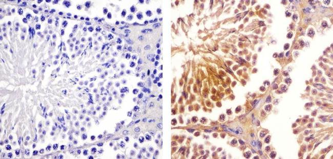 SOCS1 Antibody (38-5200) in Immunohistochemistry (Paraffin)