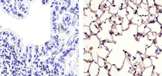 Claudin 18 Antibody (38-8000) in Immunohistochemistry (Paraffin)