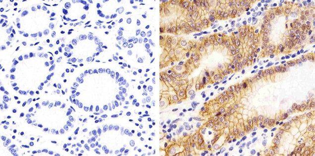 Claudin 18 Antibody (38-8100) in Immunohistochemistry (Paraffin)