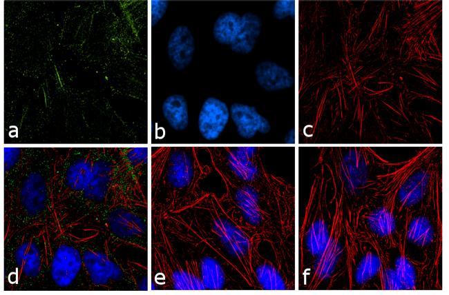 PPAP2B Antibody (39-1000)