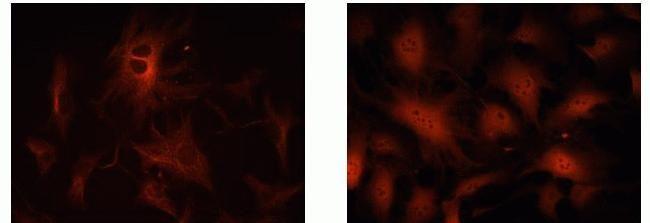 p18 / INK4c Antibody (39-3400)