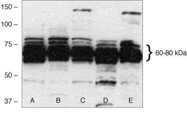 hCdc4 Antibody (40-1500) in Western Blot