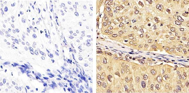 hCdc4 Antibody (40-1500) in Immunohistochemistry (Paraffin)