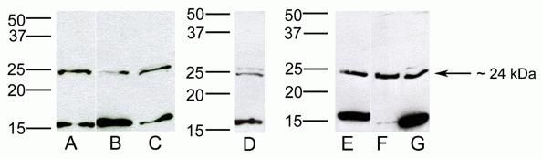 HOXB7 Antibody (40-2000)