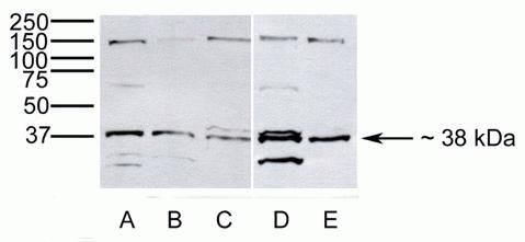 Arfaptin 2 Antibody (40-2400)