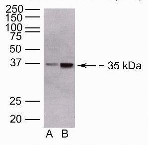 ANGPTL4 Antibody (40-9800) in Western Blot